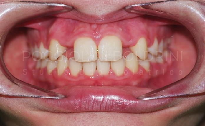 Poggiolini Boldrini Studio Odontoiatrico | Caso agenesia A
