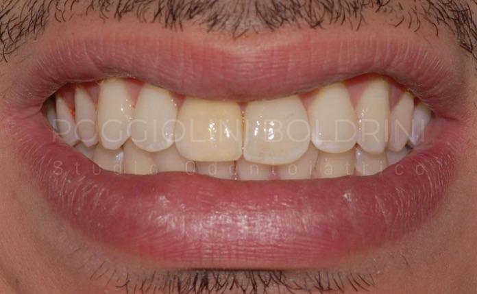 Poggiolini Boldrini Studio Odontoiatrico | Caso faccette A