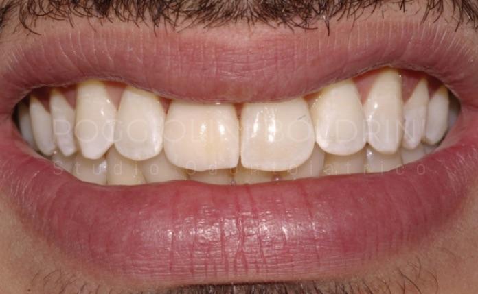 Poggiolini Boldrini Studio Odontoiatrico | Caso faccette B