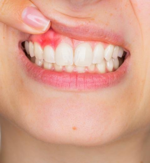 Poggiolini Boldrini Studio Odontoiatrico | Trattamenti parodontologia