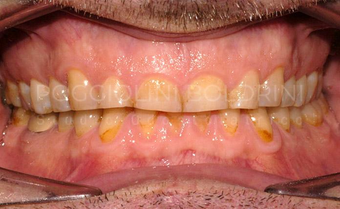 Poggiolini Boldrini Studio Odontoiatrico | Riabilitazione A