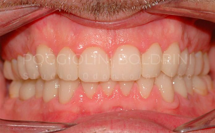 Poggiolini Boldrini Studio Odontoiatrico | Riabilitazione B