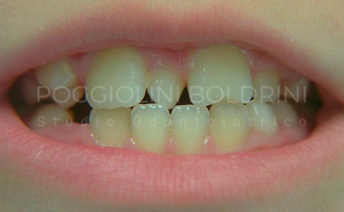 Poggiolini Boldrini Studio Odontoiatrico | Riabilitazione C