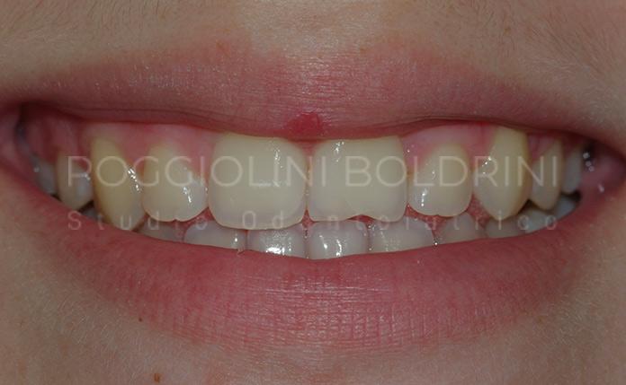 Poggiolini Boldrini Studio Odontoiatrico | Riabilitazione D