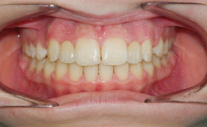 Poggiolini Boldrini Studio Odontoiatrico | Caso ortodonzia adulti A