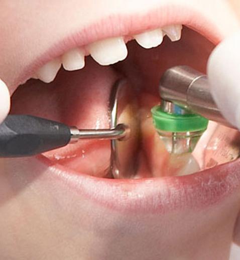 Poggiolini Boldrini Studio Odontoiatrico | Ozono 2